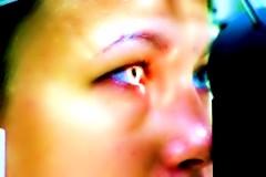 Коррекция зрения методом femto-lasik