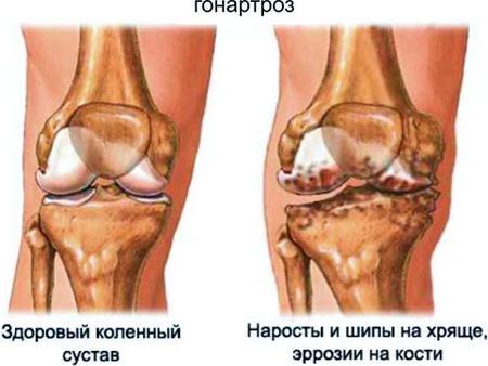 Болят суставы в коленях судорогив нгах перелом лучевого сустава со смещением