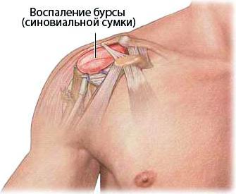 Диагностика заболеваний плечевого сустава