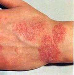 лечение аллергии на клещей