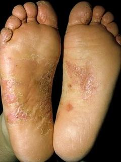 Лекарства против грибка ногтей на ногах недорого
