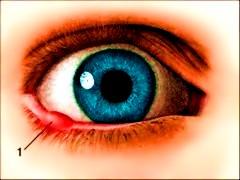Аллергия на женских половых органах и как лечить