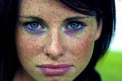 Почему остаются темные пятна на коже