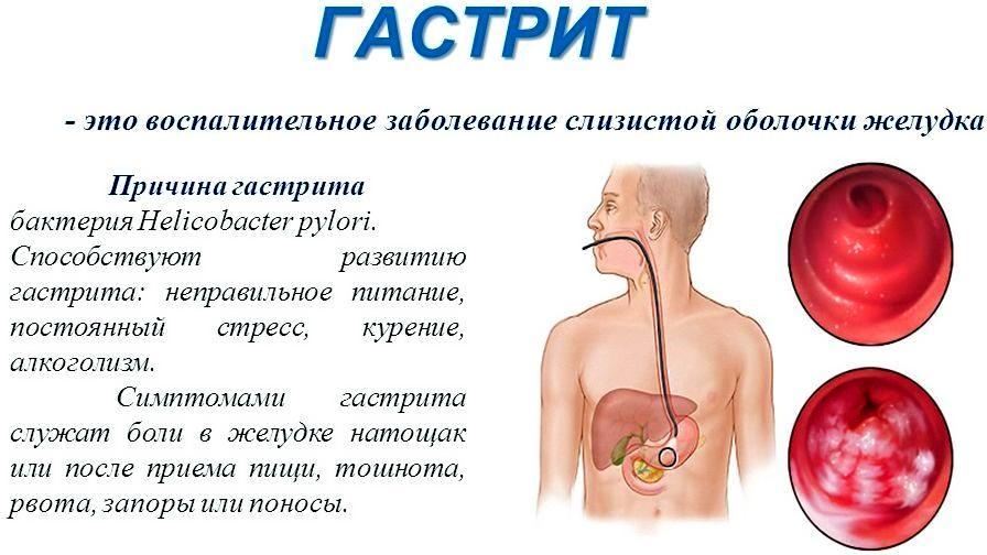 Как лечить гастрит в домашних условиях с повышенной кислотностью