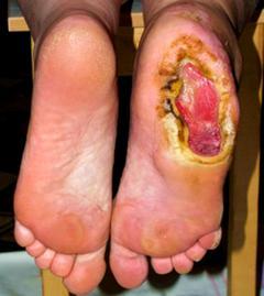 Трофическая язва на ноге как лечить в домашних условиях фото