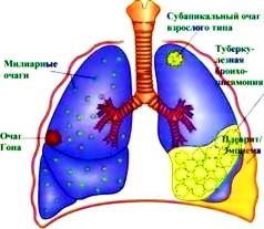аллергия на смесь нутрилон премиум 1 признаки