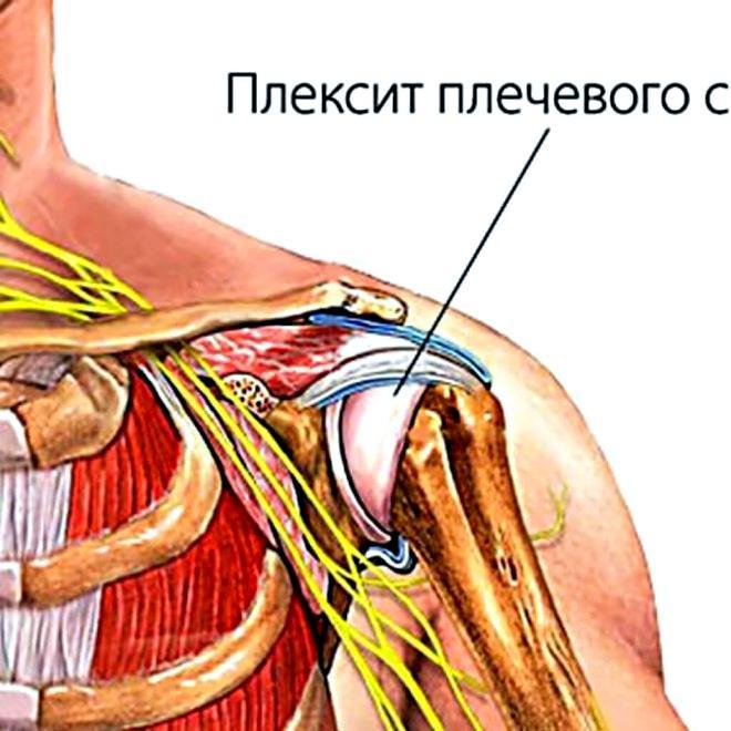 Болезни плечевого сустава в домашних условиях