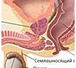 простатит, мужское здоровье, импотенция, предстательная железа