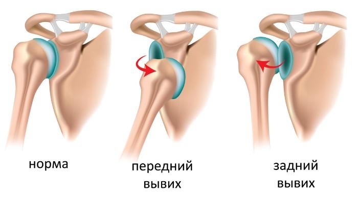 Растяжение мышц плеча лечение